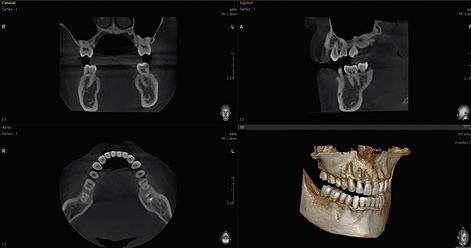 Radiografie 10 x 8 cm