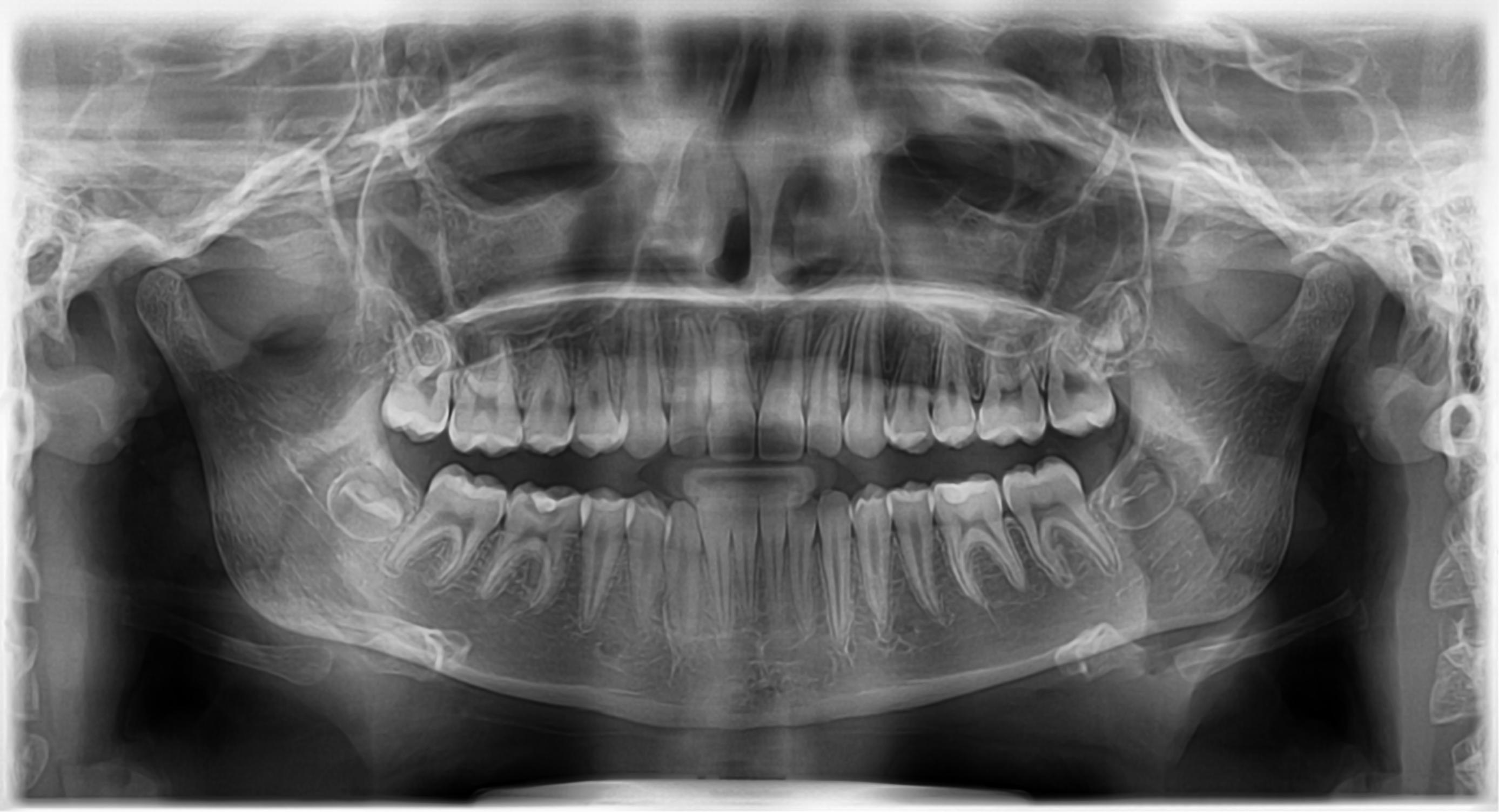 Radiografii panoramice Deva