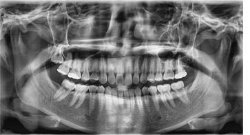 Radiografie panoramica deva
