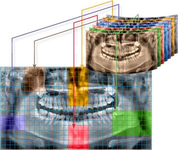 Radiografii dentare Deva